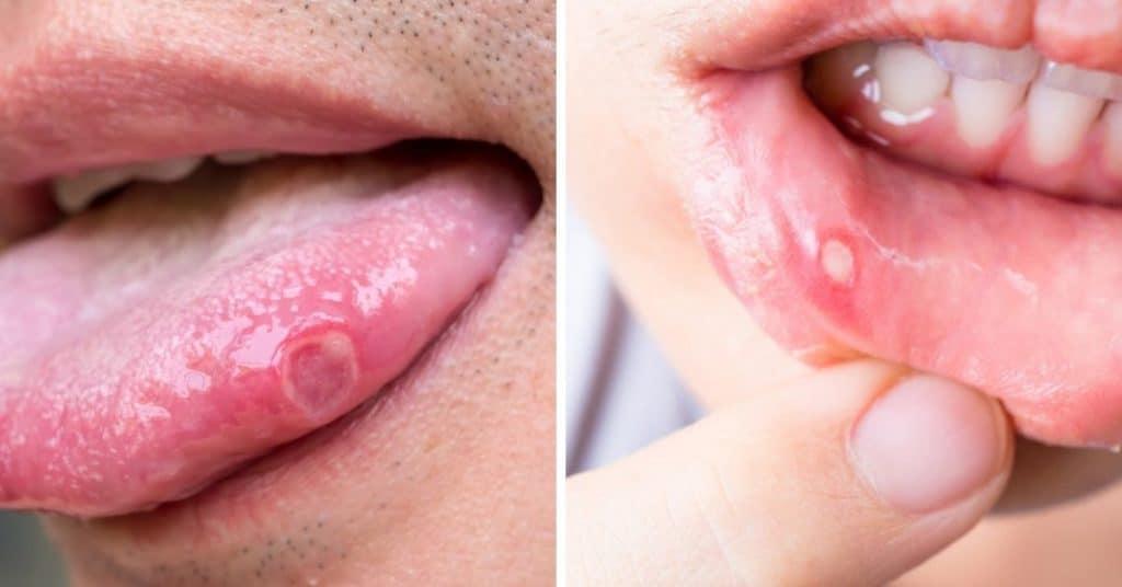 afty v ústach a na jazyku